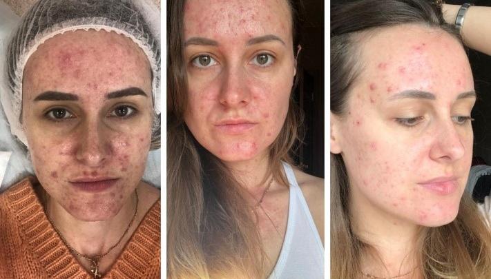 «Все офигели». Сибирячка с акне рассказала, как вылечила кожу без врачей и таблеток. Фото до и после