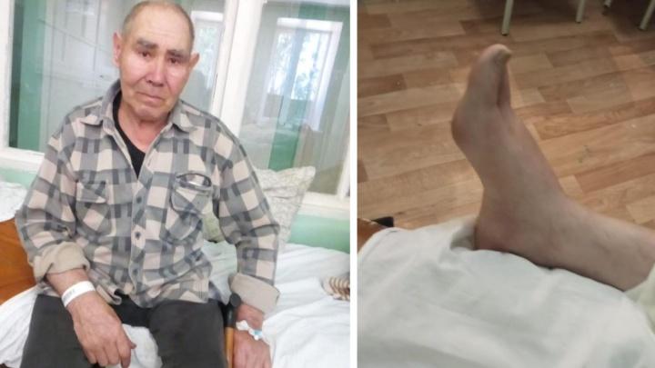 Житель Башкирии лишился ноги и заработал инсульт. Дочь винит в этом врачей