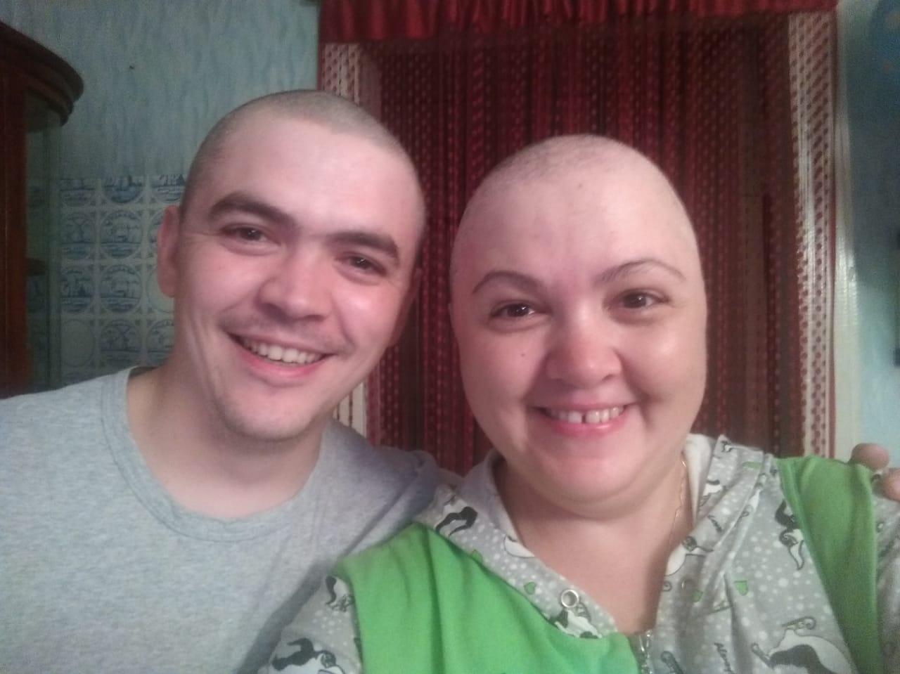 Во время химиотерапии Наталья потеряла волосы. Ее брат тоже побрился налысо—в знак поддержки