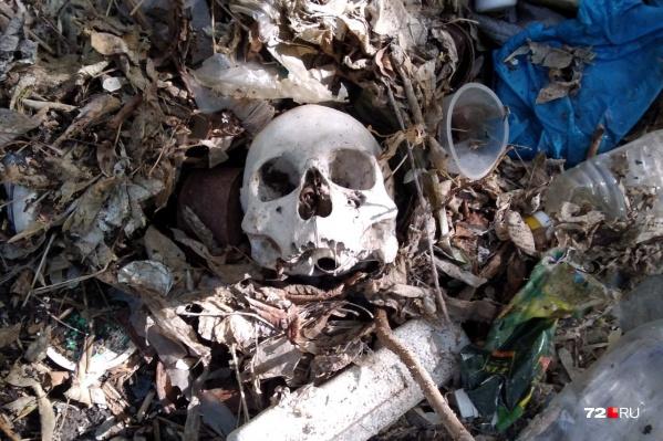 Останки лежали в куче мусора на берегу реки. Эксперт предположил, что это женщина, но точные данные установят только после исследований