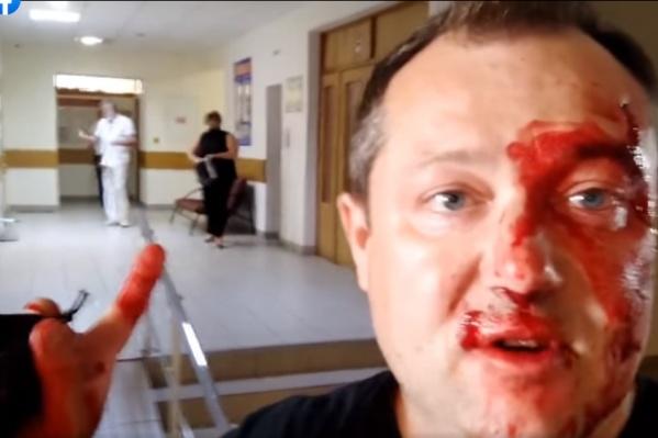 Лицо Полушина в крови, он считает, что его пытались спровоцировать