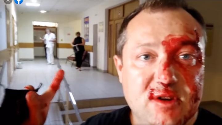 Журналист Дмитрий Полушин заявил об избиении в избиркоме