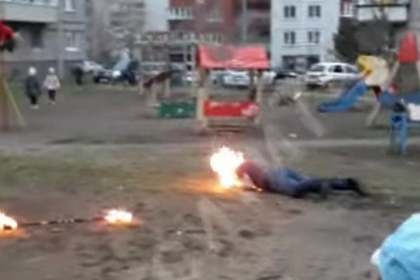 Во время представления огонь перекинулся на лицо факира