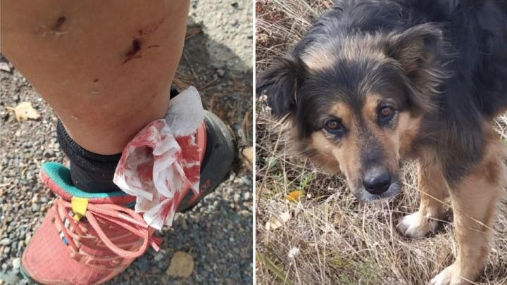 «Их чипируют и возвращают обратно»: бродячая собака напала на велосипедистку в «Гремячей гриве»