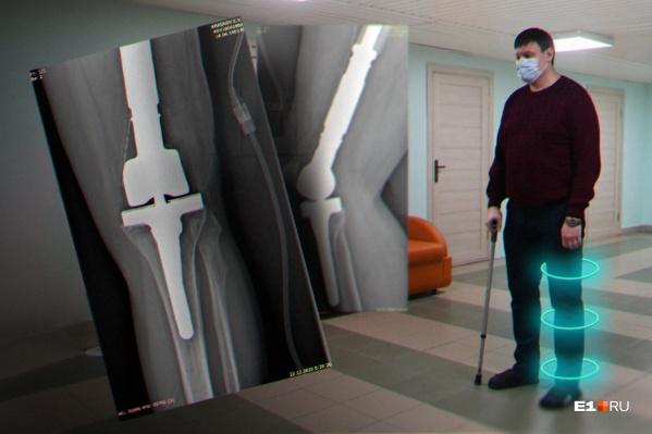 У Константина Краснова дважды появлялась опухоль кости на левой ноге. В первый раз она была доброкачественной, во второй раз образовалась саркома