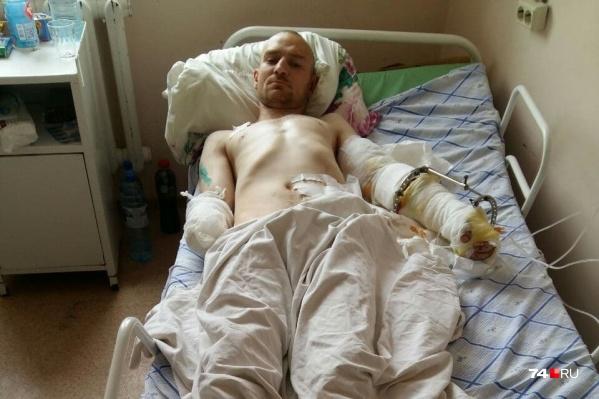 Дмитрий после нападения овчарки остался инвалидом — кисть правой руки у него ампутирована