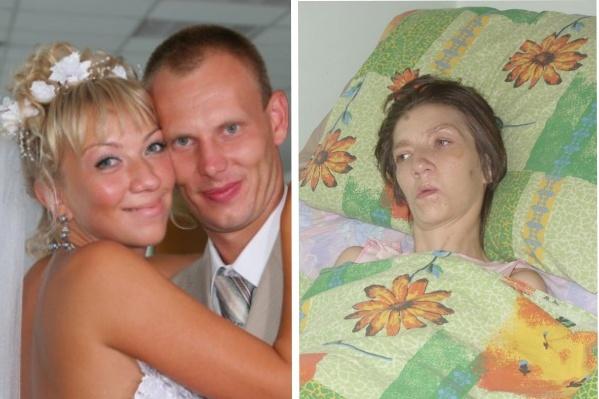 Ирина в день свадьбы и после трагедии — во время лечения