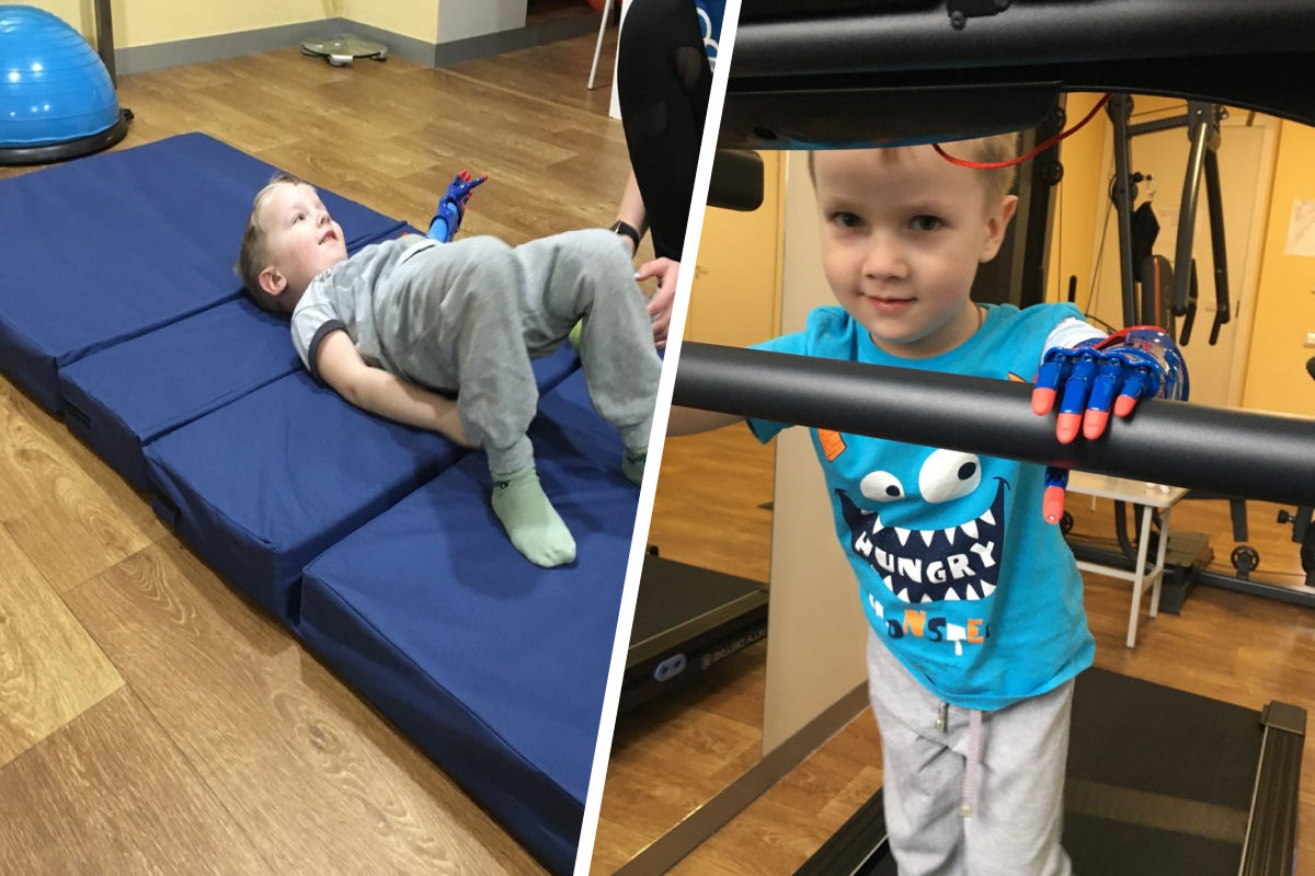 На реабилитации ребенок занимается лечебной физкультурой
