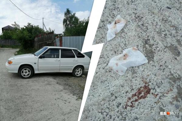 Рядом с машиной нашли окровавленные салфетки