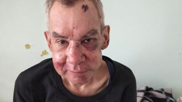 «Ушиб мозга, сломан нос»: под Волгоградом группа подростков искалечила мужчину за дешевые сигареты