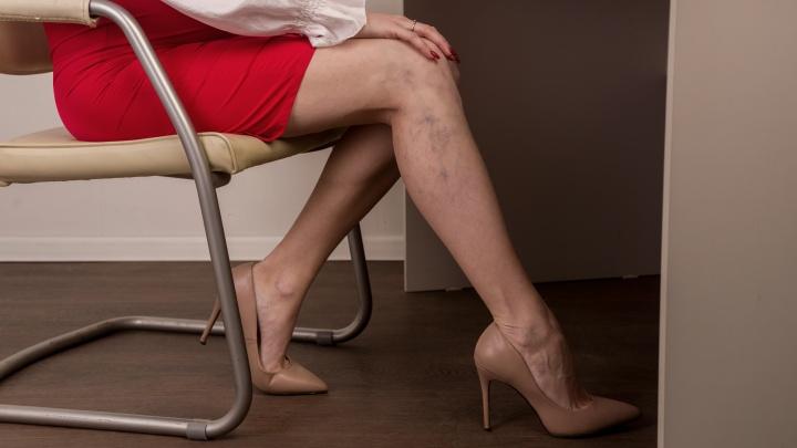 «Теперь постоянно ноги разглядывать?»: чем опасен варикоз и как его вылечить тем, кому неповезло