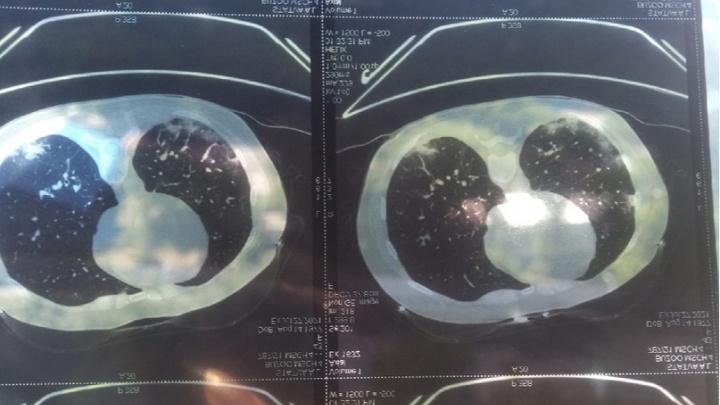 «Система наша ни к черту»: экс-чиновница заболела коронавирусом и три дня пыталась добиться медпомощи