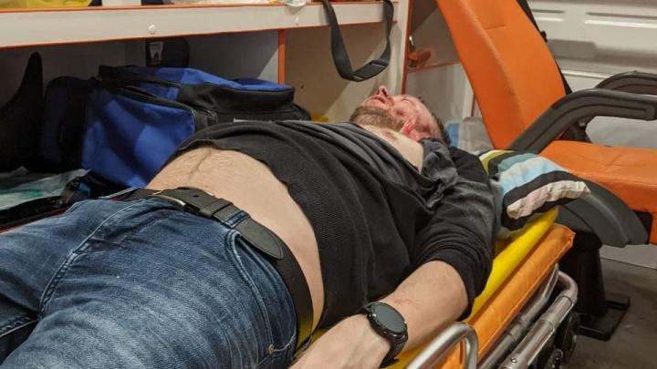 Тройной перелом черепа: ярославец впал в кому после драки в баре