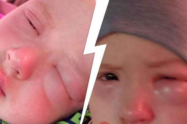 Сильная аллергия началась у трехлетнего Миши из-за лекарства, которое выписал невролог