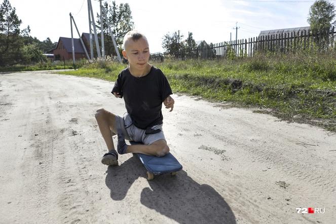 Ситуация с кражей решилась — ему подарили новые скейты. Сразу четыре штуки. Сам Серафим говорит, что скейт — это его ноги