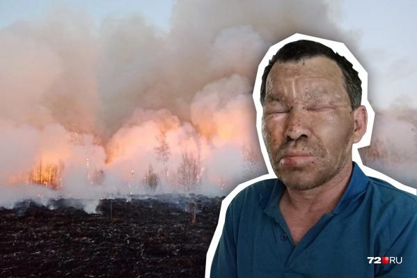 Ришат Каримов получил ожоги. У него пострадали руки и лицо