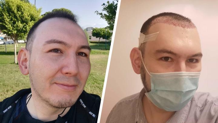 «Стал выглядеть моложе»: сибиряк начал лысеть и сделал пересадку волос — подробности необычного опыта (до и после)