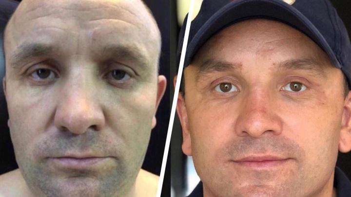 «Скинул лет 10»: какие пластические операции делают мужчины (и молчат об этом). Истории и фото