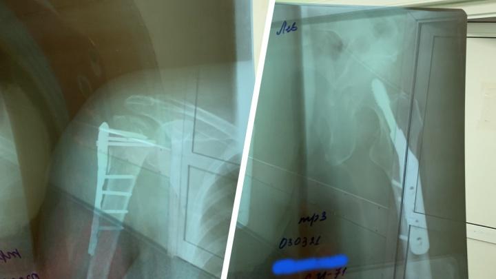 Тюменка поскользнулась возле поликлиники. Она сломала плечо и бедро