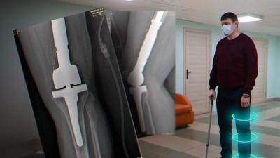 37-летнему екатеринбуржцу заменили кость в ноге на титановую, чтобы спасти от рака