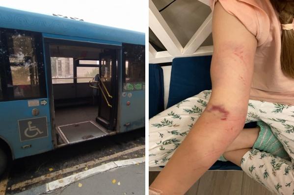 В Ярославле водитель автобуса зажал девочку в дверях и протащил по асфальту