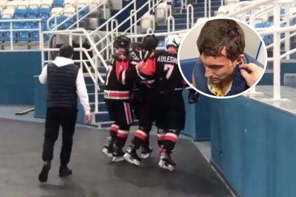 По версии клубаAppolonOff, Дмитрий Анфиногенов несколько раз ударил Александра Дзызаря клюшкой