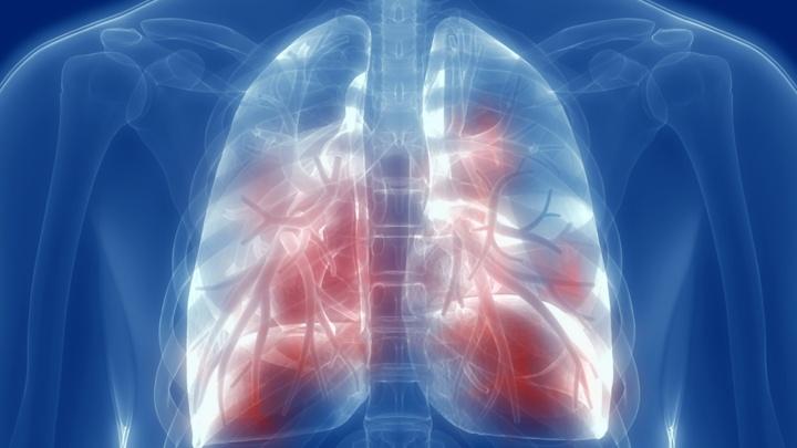 Коронавирус повышает риск заболеть туберкулезом. Список опасных и подозрительных симптомов