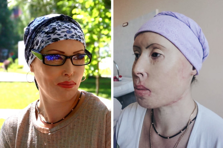 Мария проходит лечение уже 7 лет, и оно продолжается<br>