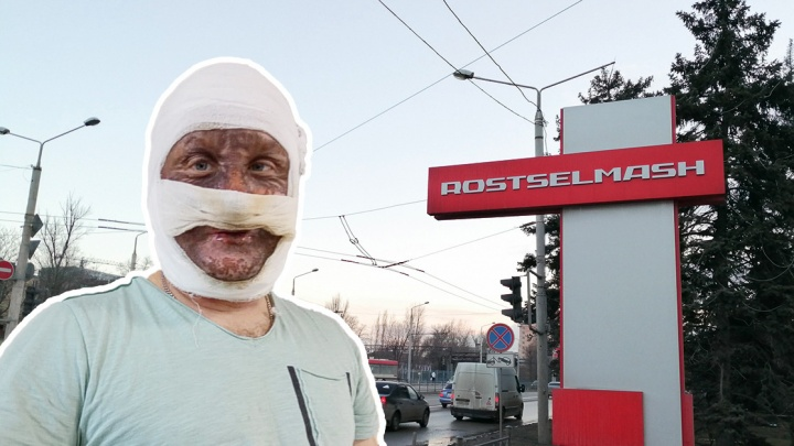 Рабочий «Ростсельмаша» обгорел при взрыве на производстве