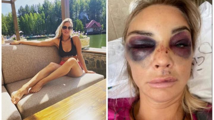Екатеринбурженку, которую похитил и избил муж-бизнесмен, отпустили из больницы домой