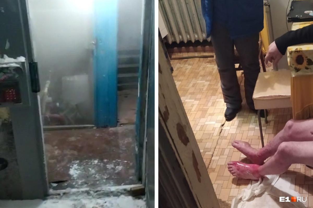 Мужчина провалился в подвал и получил ожоги