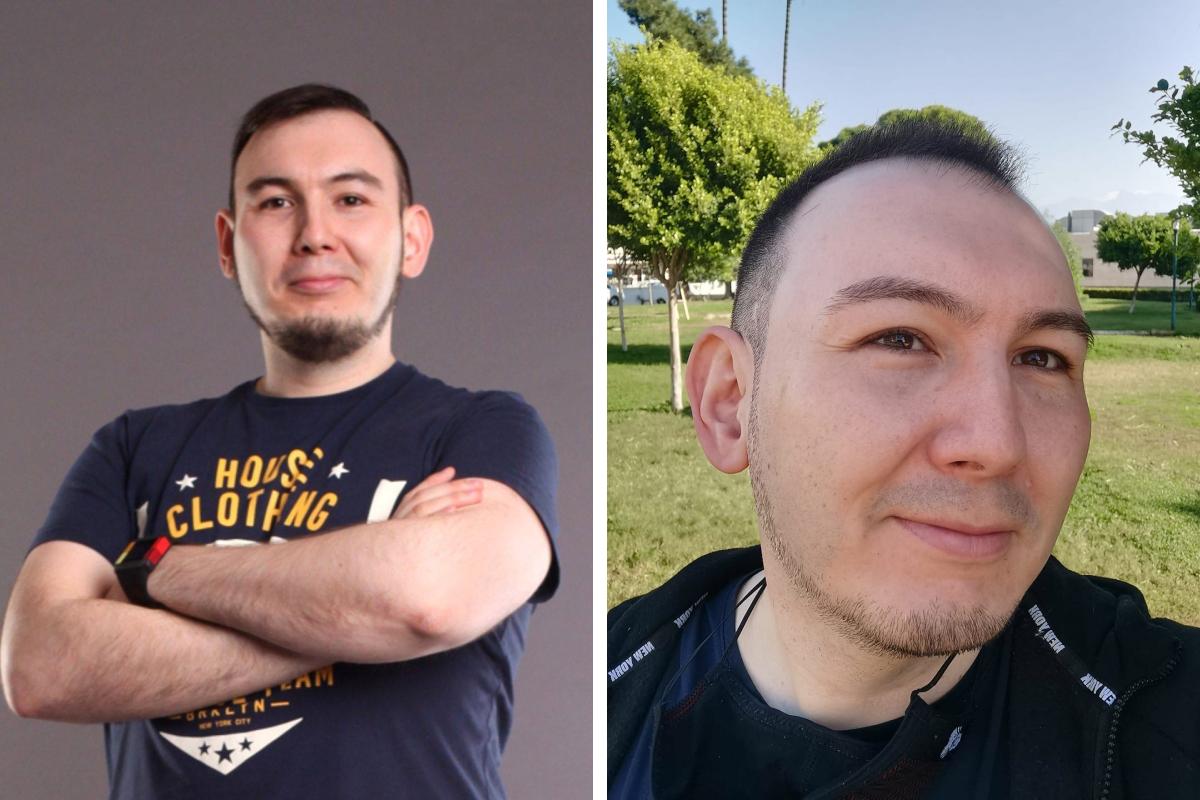 На фото хорошо видно, как с годами поредели волосы