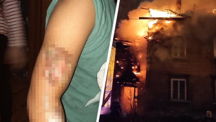«Выбегали с ними на руках, накрыв одеялом»: в пожаре впереулке Водников пострадали дети