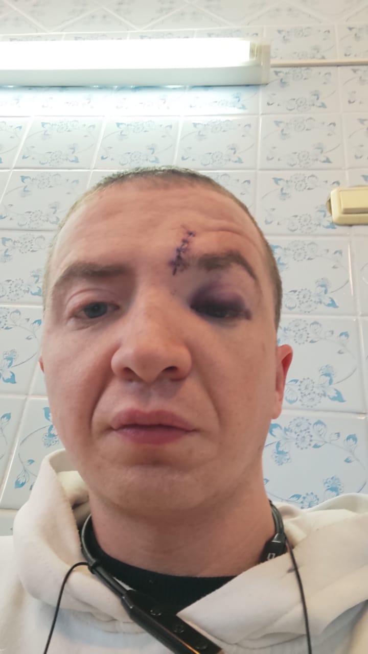 У Андрея множество ушибов. На лице гематомы и рассечение