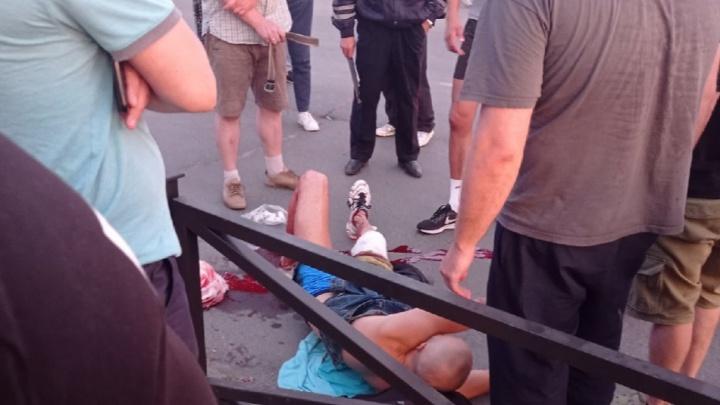 «Лежал и кричал от боли»: в Архангельске велосипедист сильно порезал ногу, въехав в ограждение