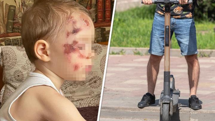 В Ростове самокатчик сбил двухлетнего мальчика. Извинился и укатил с места аварии