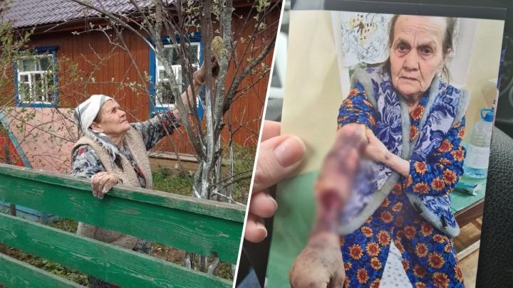 В соликамской больнице умерла пенсионерка. Родственники считают, что после капельницы у нее началась гангрена