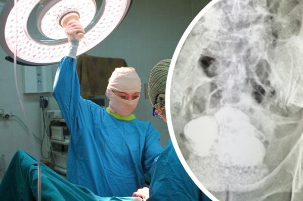 """Мужчину оперировали в Ишиме <nobr class=""""_"""">под спинальной</nobr>&nbsp;анестезией"""