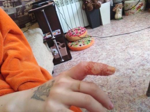 В детской больнице Кемерово ребенок получил ожог: проведена служебная проверка