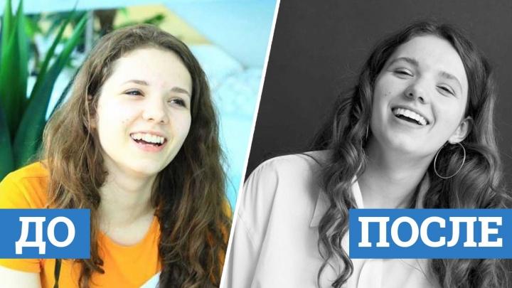 Красотки с голливудской улыбкой: как сибирячки изменились после брекетов (фото до и после)