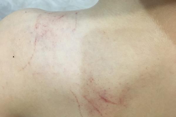 Такие следы мама увидела на плече и спине 8-летнего танцора