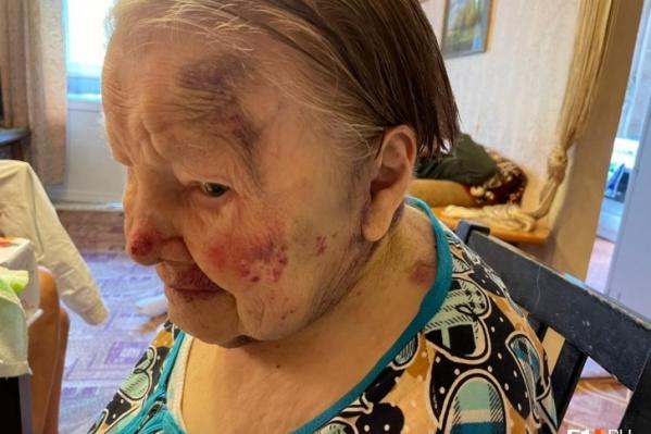 По словам пожилой женщины, сиделка отказалась измерить ей давление, а затем избила ее