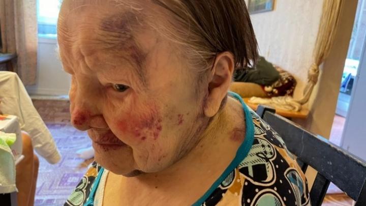 В Екатеринбурге возбудили уголовное дело после избиения 95-летней бабушки