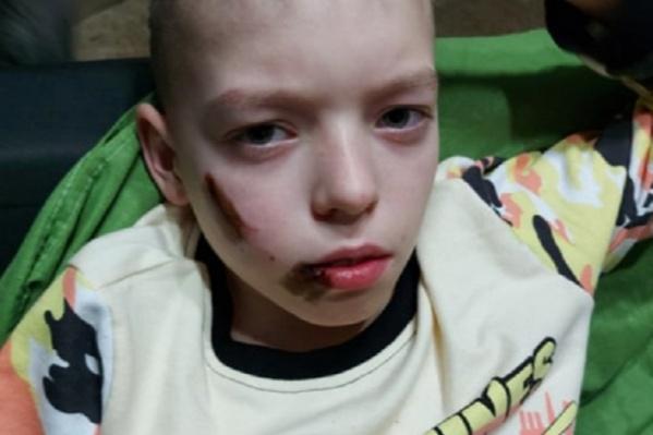 У мальчика раны на лице и плече