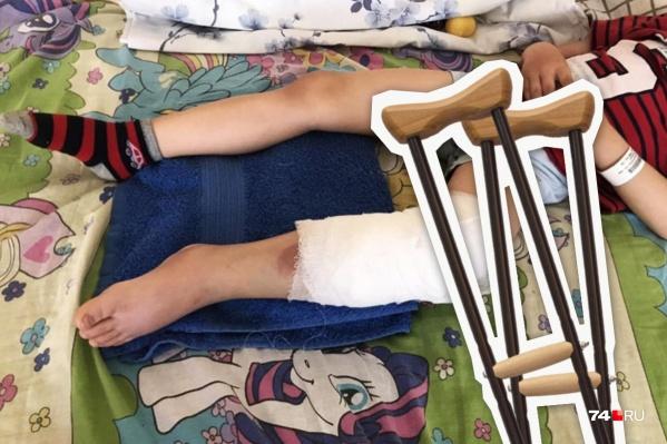 После наезда самоката мальчику сделали на ноге операцию в областной детской больнице