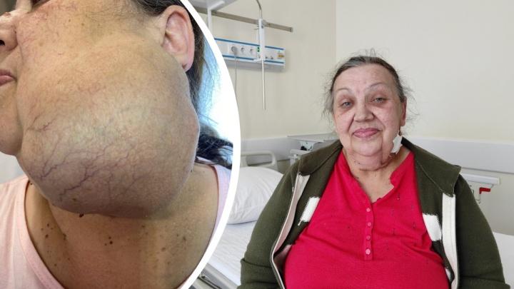 У пенсионерки на лице хирурги вырезали 1,5-килограмовую опухоль. 12 лет она ее «не беспокоила»