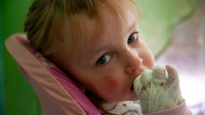 Девочке-бабочке из Ишима требуется госпитализация. Лечить ребенка с редким заболеванием будут в Москве