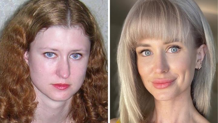 «Беру всё и сразу»: известная телеведущая изменилась до неузнаваемости после ринопластики и диеты