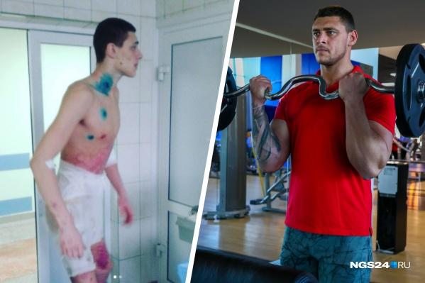 9 лет назад Дмитрий получил сильнейшие ожоги, но смог привести себя в форму