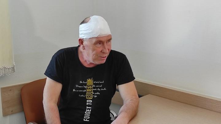 «Человек снимает шапку, а перед ним— вторая голова»: в Новосибирске спасли пациента с опухолью на лбу